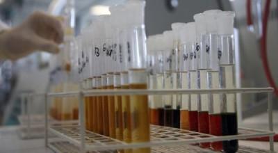 Antidoping test