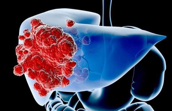 liver-cancer-e1484139684144