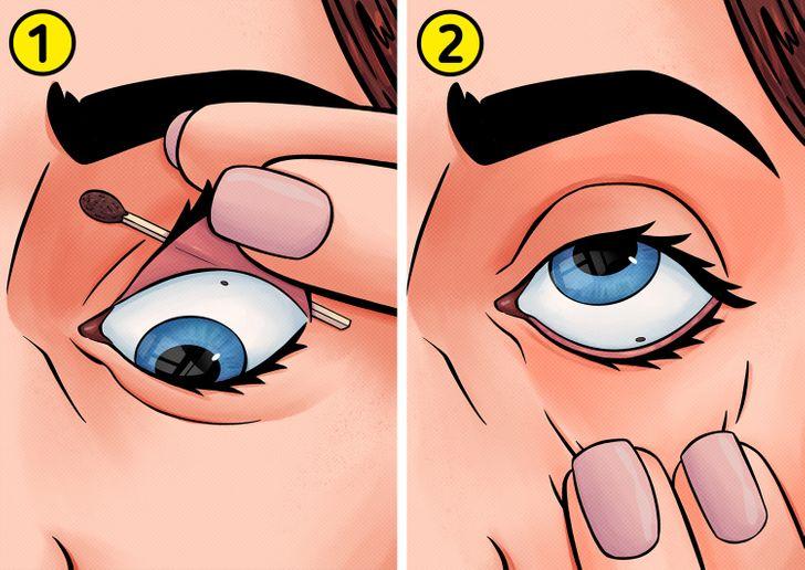 nxjerrja e materialeve nga syri (3)