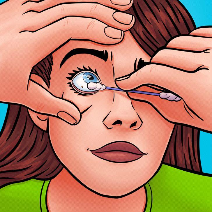 nxjerrja e materialeve nga syri (5)