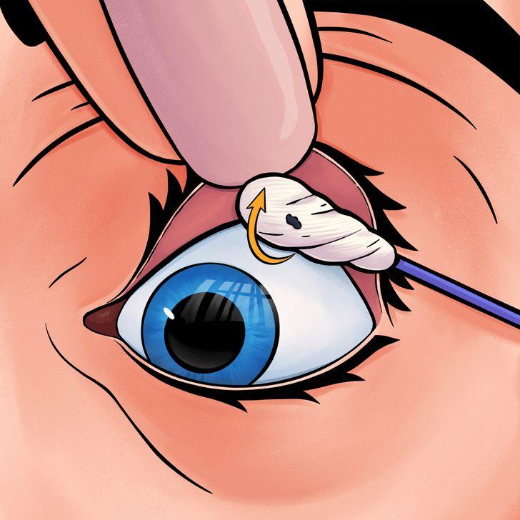 nxjerrja e materialeve nga syri (6)