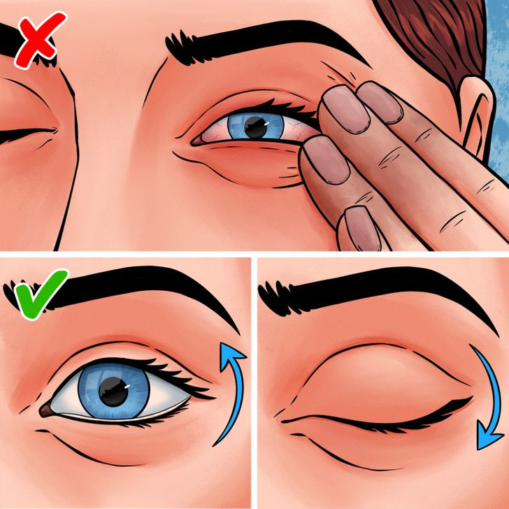 nxjerrja e materialeve nga syri (8)