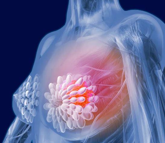 kanceri i gjirit (3)