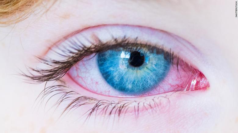 200428061545-bloodshot-red-eye-stock-exlarge-169